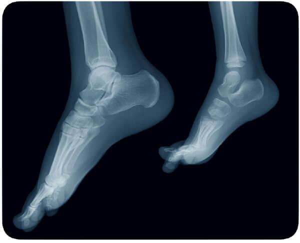 大人と子どもの足のレントゲン写真。子どもの骨は関節が軟骨のため、レントゲンではつながっていないように見える。